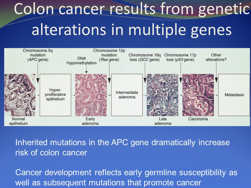 Colon cancer results from genetic alterations in multiple genes Inherited mutations in the APC gene dramatically increase risk of colon cancer Cancer development reflects early germline susceptibility as well as subsequent mutations that promote cancer