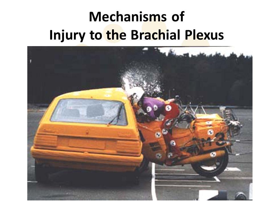 Mechanisms of Injury to the Brachial Plexus