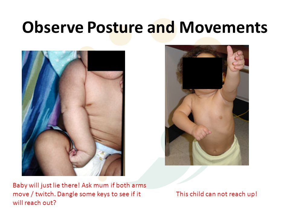 Observe Posture and Movements Baby will just lie there! Ask mum if both arms move / twitch. Dangle some keys to see if it will reach out? This child c