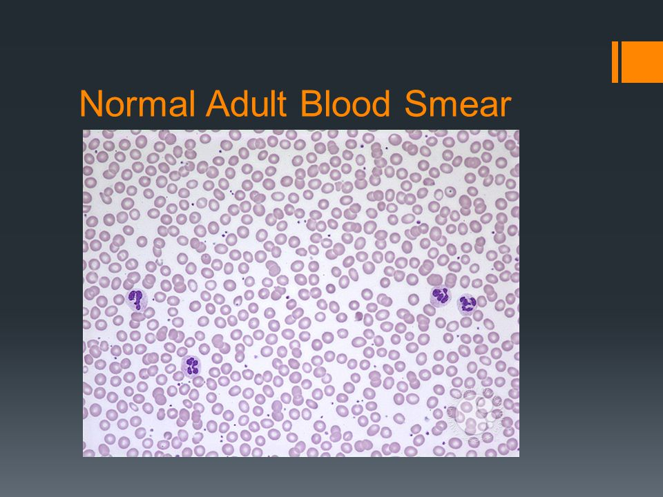 Normal Adult Blood Smear