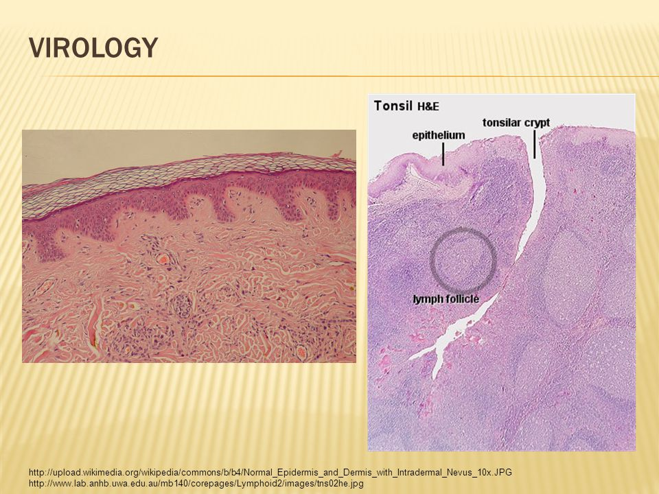 VIROLOGY http://upload.wikimedia.org/wikipedia/commons/b/b4/Normal_Epidermis_and_Dermis_with_Intradermal_Nevus_10x.JPG http://www.lab.anhb.uwa.edu.au/mb140/corepages/Lymphoid2/images/tns02he.jpg