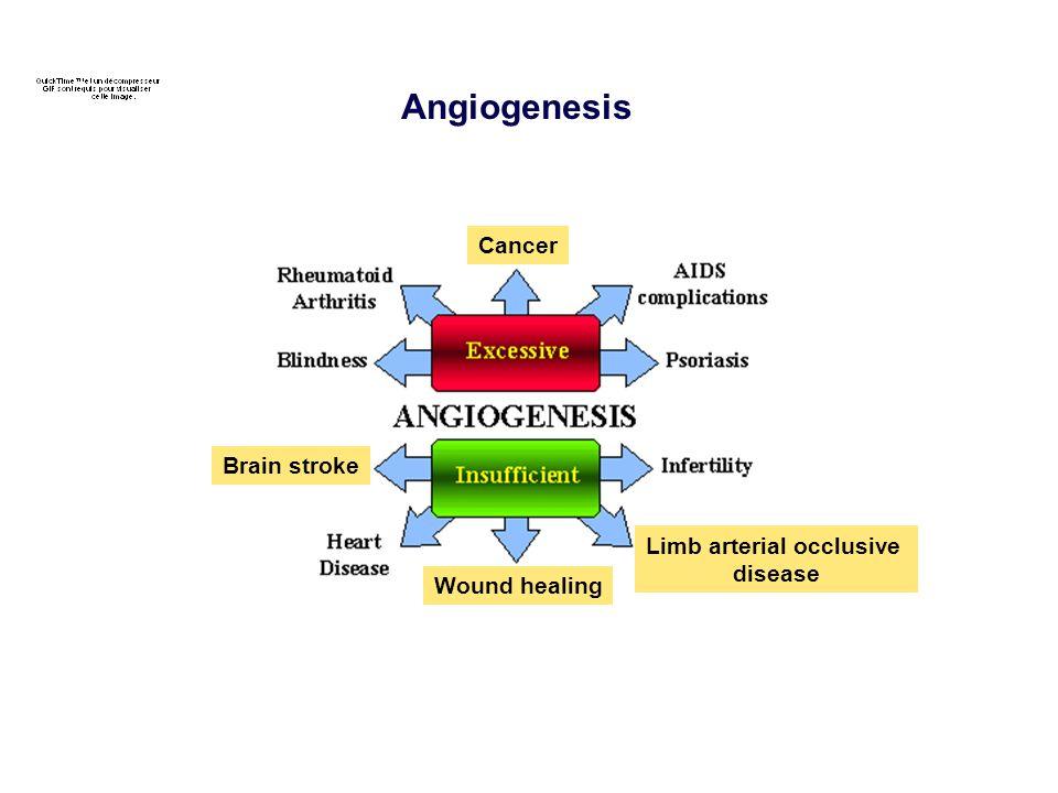 Angiogenesis Brain stroke Wound healing Limb arterial occlusive disease Cancer