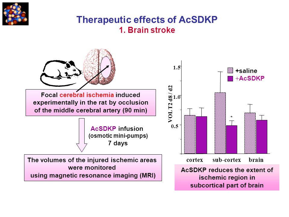 Therapeutic effects of AcSDKP 1. Brain stroke * cortex sub-cortex brain 0.5 1.5 1.0 +saline + AcSDKP VOL T2 d8 / d2 AcSDKP reduces the extent of ische