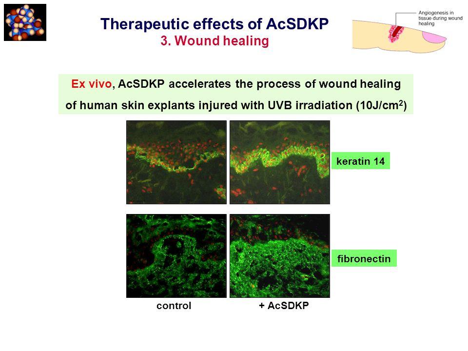 Ex vivo, AcSDKP accelerates the process of wound healing of human skin explants injured with UVB irradiation (10J/cm 2 ) control + AcSDKP keratin 14 f