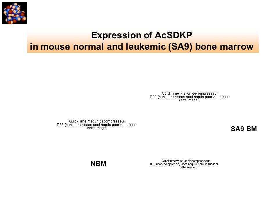 NBM SA9 BM Expression of AcSDKP in mouse normal and leukemic (SA9) bone marrow