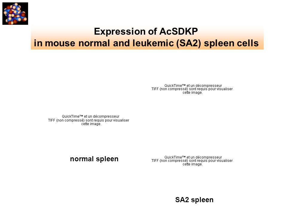 Expression of AcSDKP in mouse normal and leukemic (SA2) spleen cells normal spleen SA2 spleen