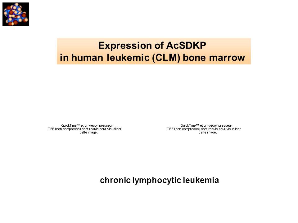 Expression of AcSDKP in human leukemic (CLM) bone marrow chronic lymphocytic leukemia