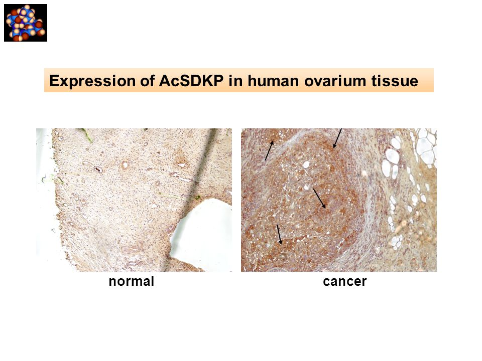 normal cancer Expression of AcSDKP in human ovarium tissue