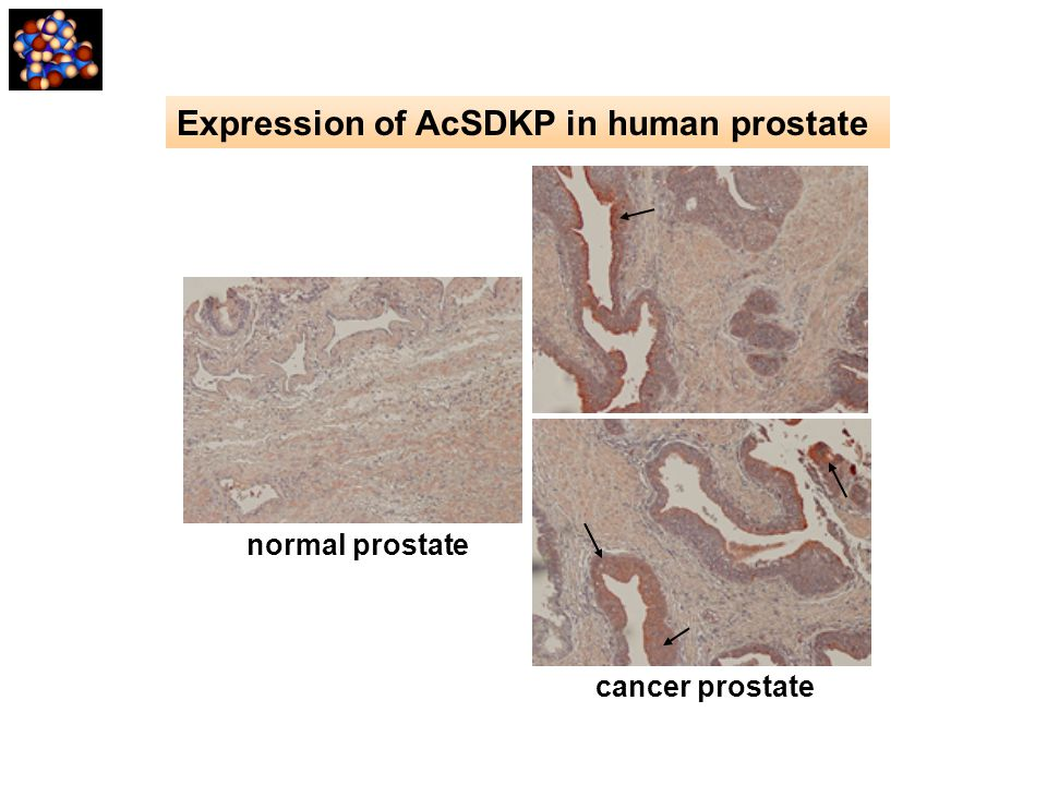 cancer prostate normal prostate Expression of AcSDKP in human prostate