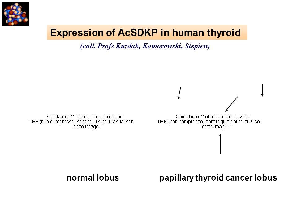(coll. Profs Kuzdak, Komorowski, Stepien) normal lobus papillary thyroid cancer lobus Expression of AcSDKP in human thyroid