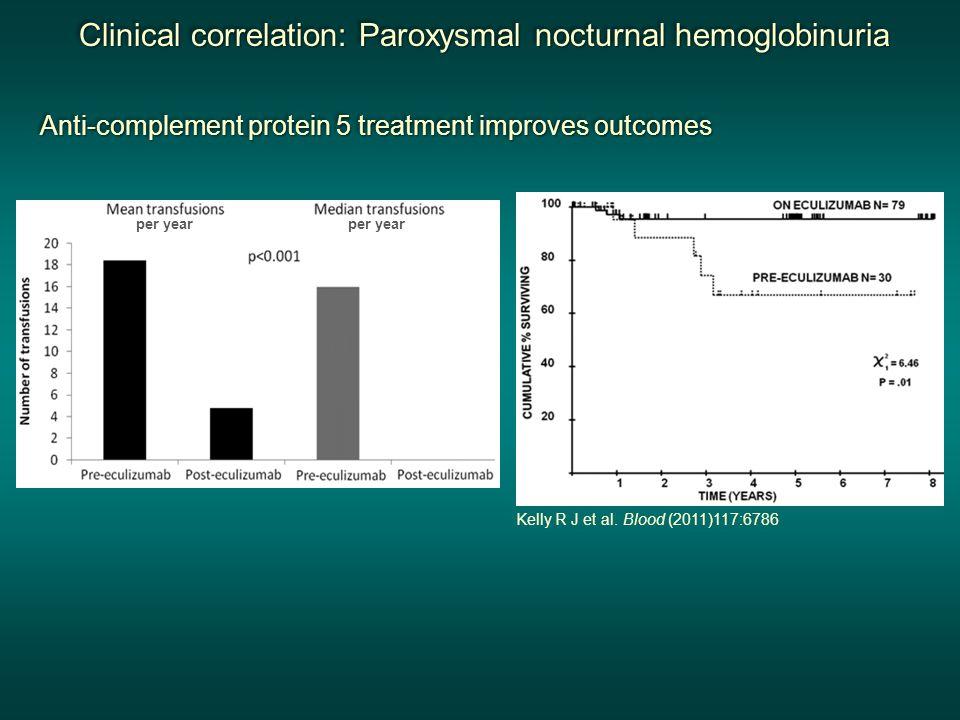 Clinical correlation: Paroxysmal nocturnal hemoglobinuria Clinical correlation: Paroxysmal nocturnal hemoglobinuria Clinical correlation: Paroxysmal n
