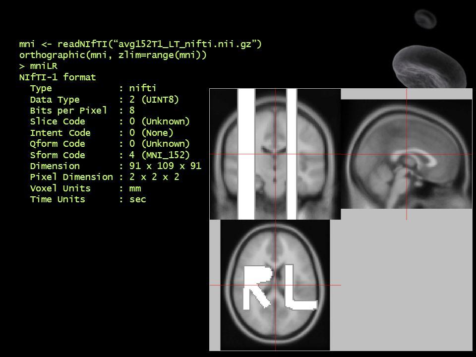 "15 mni <- readNIfTI(""avg152T1_LT_nifti.nii.gz"") orthographic(mni, zlim=range(mni)) > mniLR NIfTI-1 format Type : nifti Data Type : 2 (UINT8) Bits per"