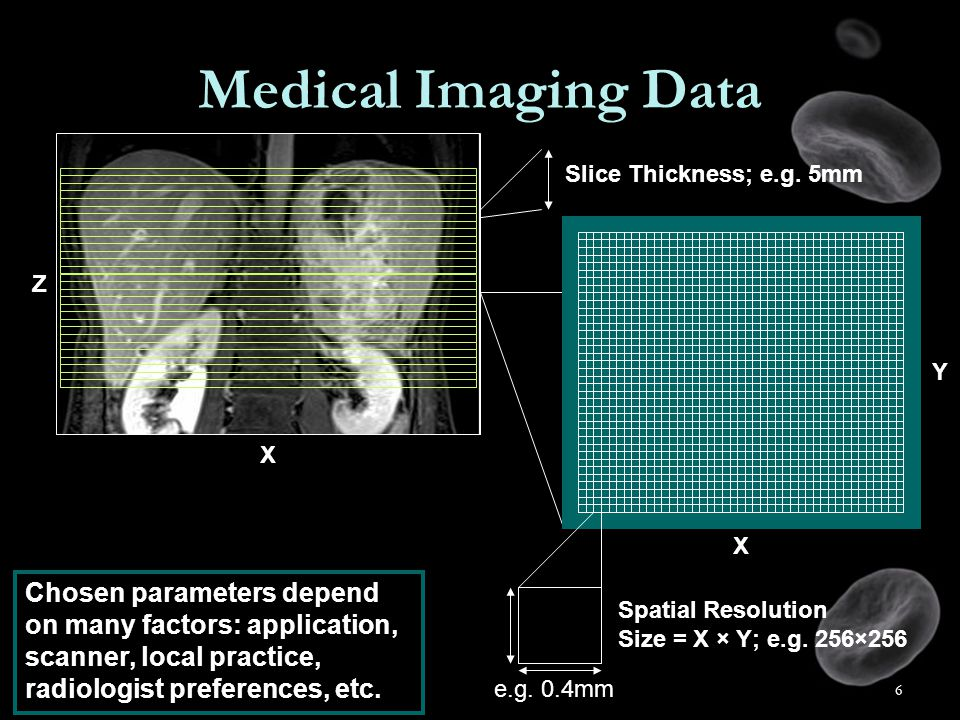 6 Medical Imaging Data Slice Thickness; e.g. 5mm Spatial Resolution Size = X × Y; e.g.