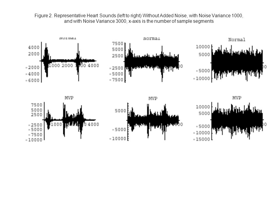 Figure 2. Representative Heart Sounds (left to right) Without Added Noise, with Noise Variance 1000, and with Noise Variance 3000, x-axis is the numbe