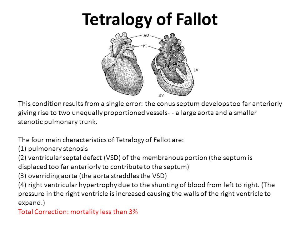 Tetralogy of Fallot This condition results from a single error: the conus septum develops too far anteriorly giving rise to two unequally proportioned