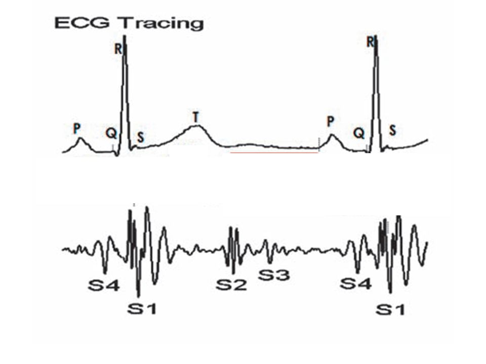 Normal heart sounds are associated with heart valves closing, causing changes in blood flow Common: S 1 : The first heart tone, or S 1, forms the lubb of lubb-dub Closure of the atrioventricular valves S 2 : The second heart tone, or S 2, forms the dub of lubb-dub Closure of the aortic valve and pulmonary valve at the end of ventricular systole Not so common: In young children can hear.