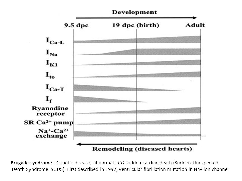 Brugada syndrome : Genetic disease, abnormal ECG sudden cardiac death (Sudden Unexpected Death Syndrome -SUDS). First described in 1992, ventricular f