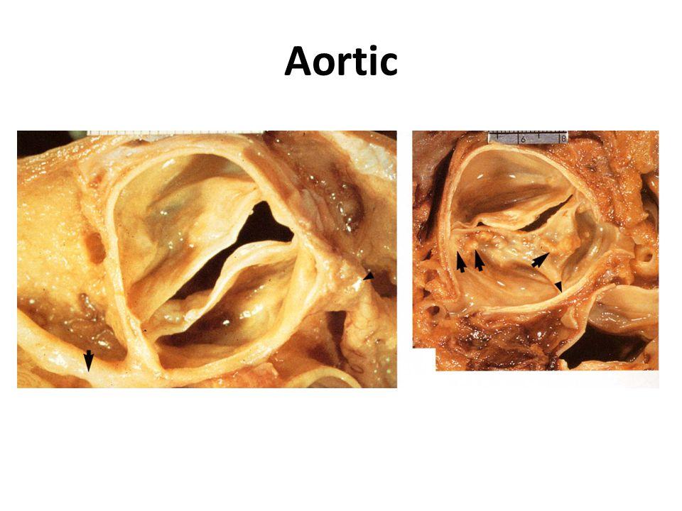 Fetus Heart: Before & After Birth Ductus venosus Ductus arteriosus Foramen ovale