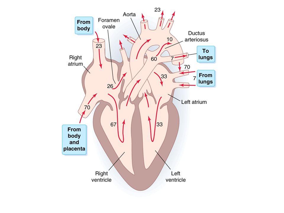 Sounds Ventricular septal defect Normal http://www.easyauscultation.com/cases- listing-details.aspx?caseID=7
