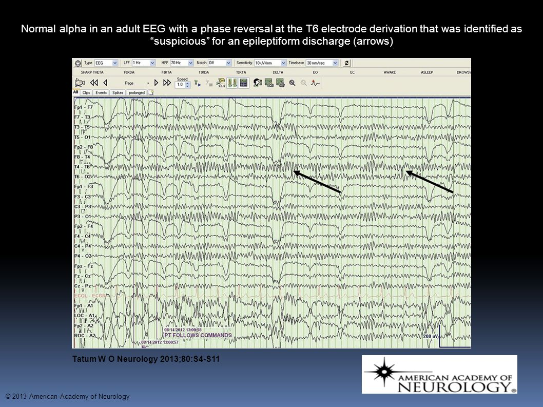 Normal alpha in an adult EEG with a phase reversal at the T6 electrode derivation that was identified as suspicious for an epileptiform discharge (arrows) with a phase reversal at the T6 electrode derivation that was identified as suspicious for an epileptiform discharge (arrows).