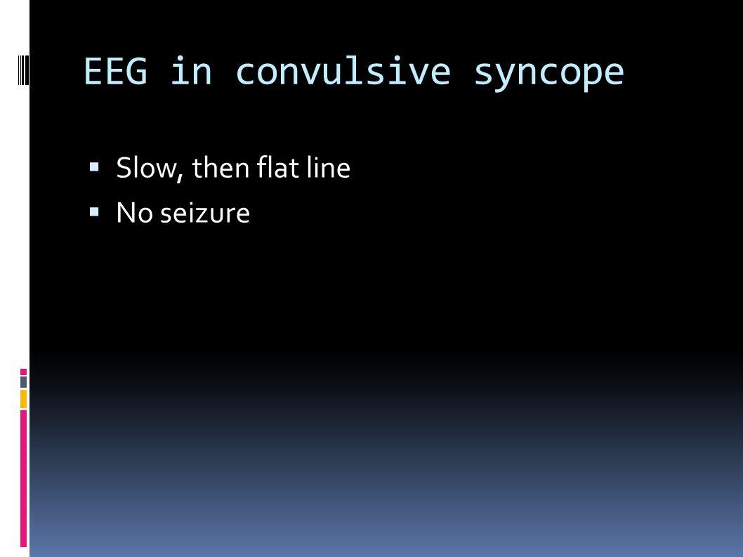 EEG in convulsive syncope  Slow, then flat line  No seizure