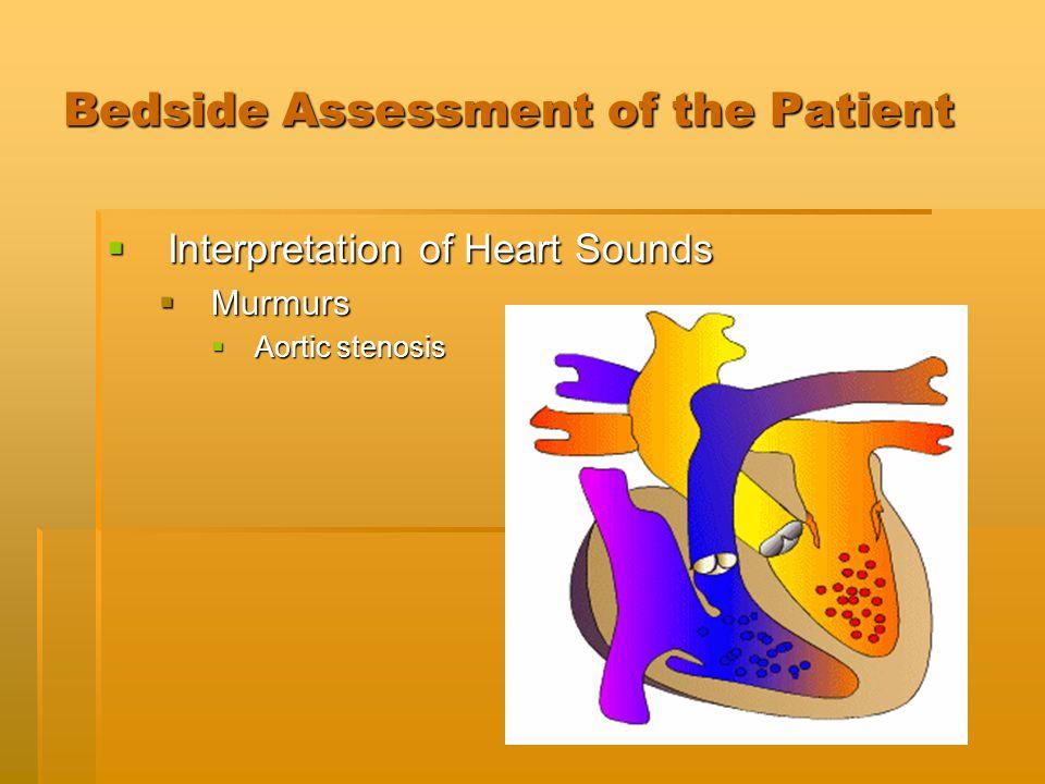 Bedside Assessment of the Patient  Interpretation of Heart Sounds  Murmurs  Aortic stenosis