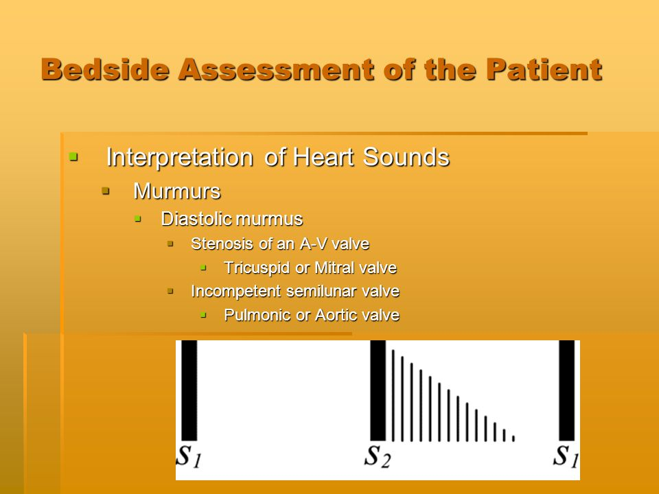 Bedside Assessment of the Patient  Interpretation of Heart Sounds  Murmurs  Diastolic murmus  Stenosis of an A-V valve  Tricuspid or Mitral valve