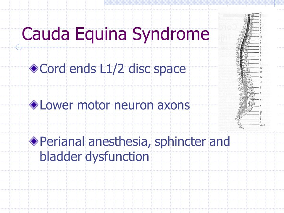 Cauda Equina Syndrome Cord ends L1/2 disc space Lower motor neuron axons Perianal anesthesia, sphincter and bladder dysfunction