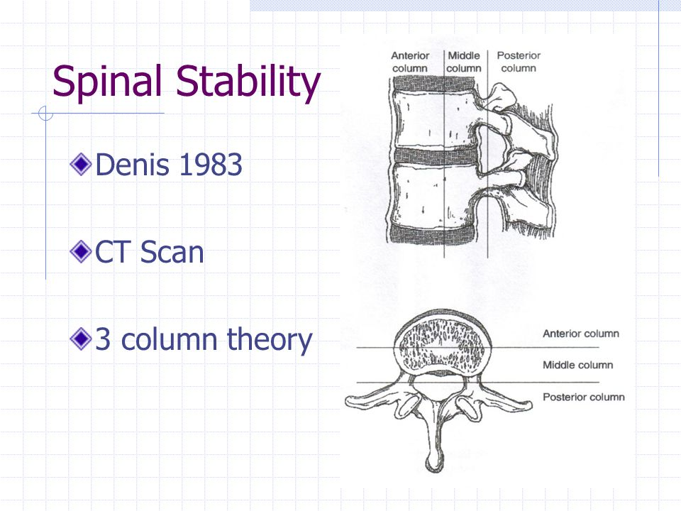 Spinal Stability Denis 1983 CT Scan 3 column theory