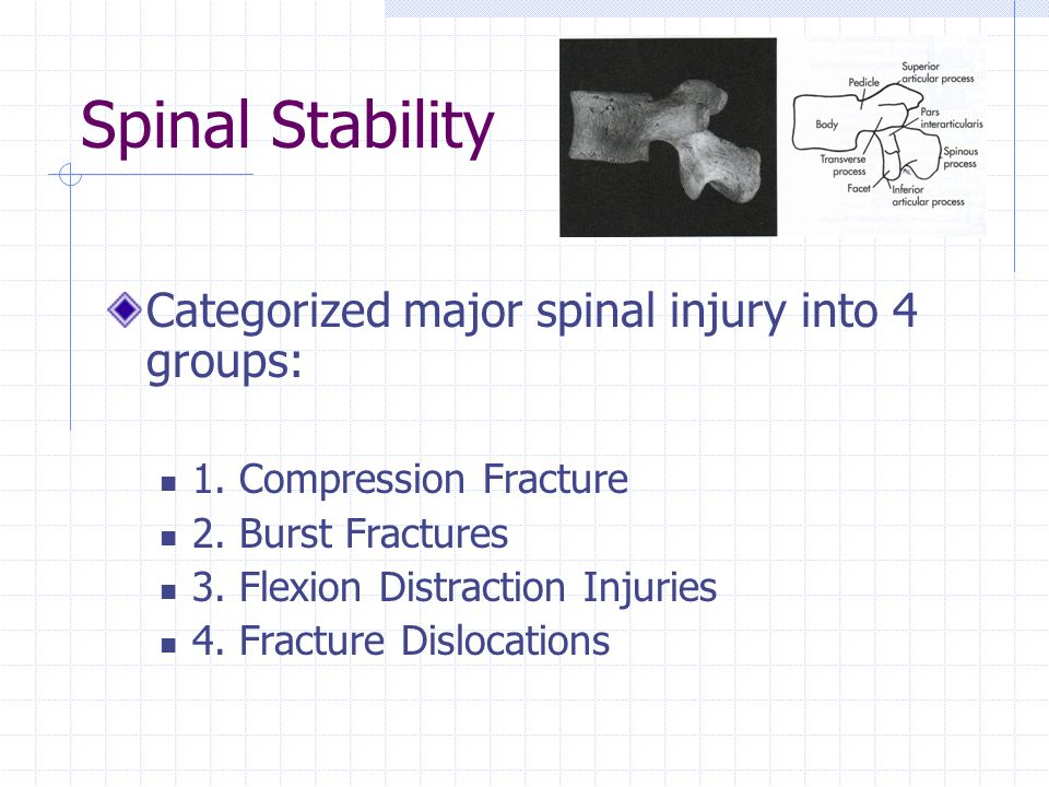 Spinal Stability Categorized major spinal injury into 4 groups: 1.