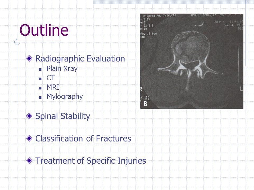 Outline Radiographic Evaluation Plain Xray CT MRI Mylography Spinal Stability Classification of Fractures Treatment of Specific Injuries