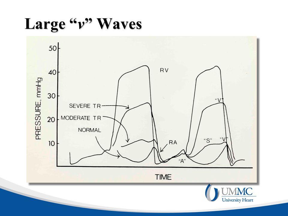 """Large """"v"""" Waves"""