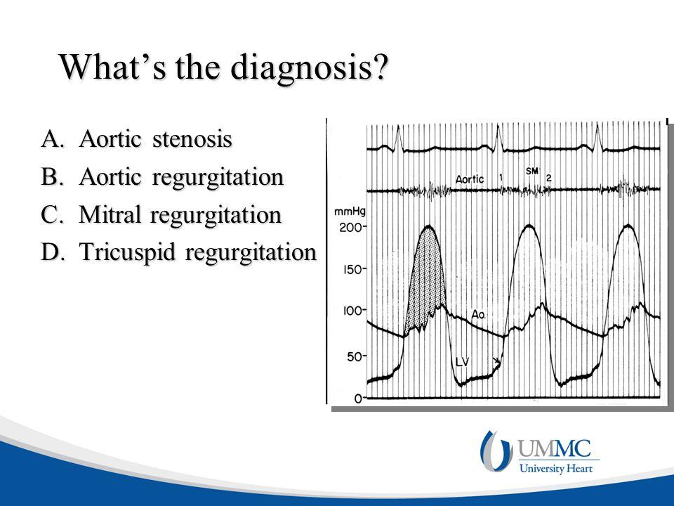 What's the diagnosis? A.Aortic stenosis B.Aortic regurgitation C.Mitral regurgitation D.Tricuspid regurgitation