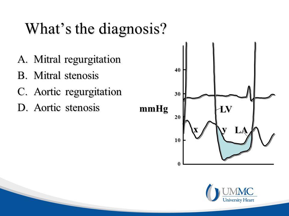 What's the diagnosis? A.Mitral regurgitation B.Mitral stenosis C.Aortic regurgitation D.Aortic stenosis 40 30 20 10 0 x LV y LA mmHg