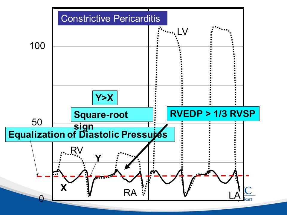 125 0 LA Equalization of Diastolic Pressures 2525 50 75 100 RA RV LV Constrictive Pericarditis X Y Y>X Square-root sign RVEDP > 1/3 RVSP