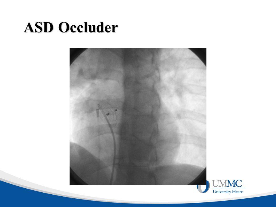 ASD Occluder