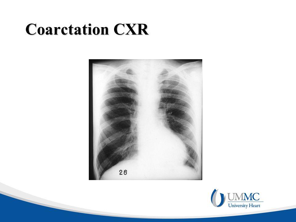 Coarctation CXR