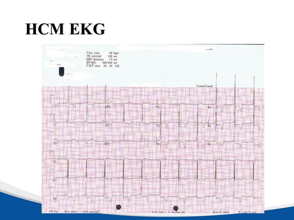 HCM EKG