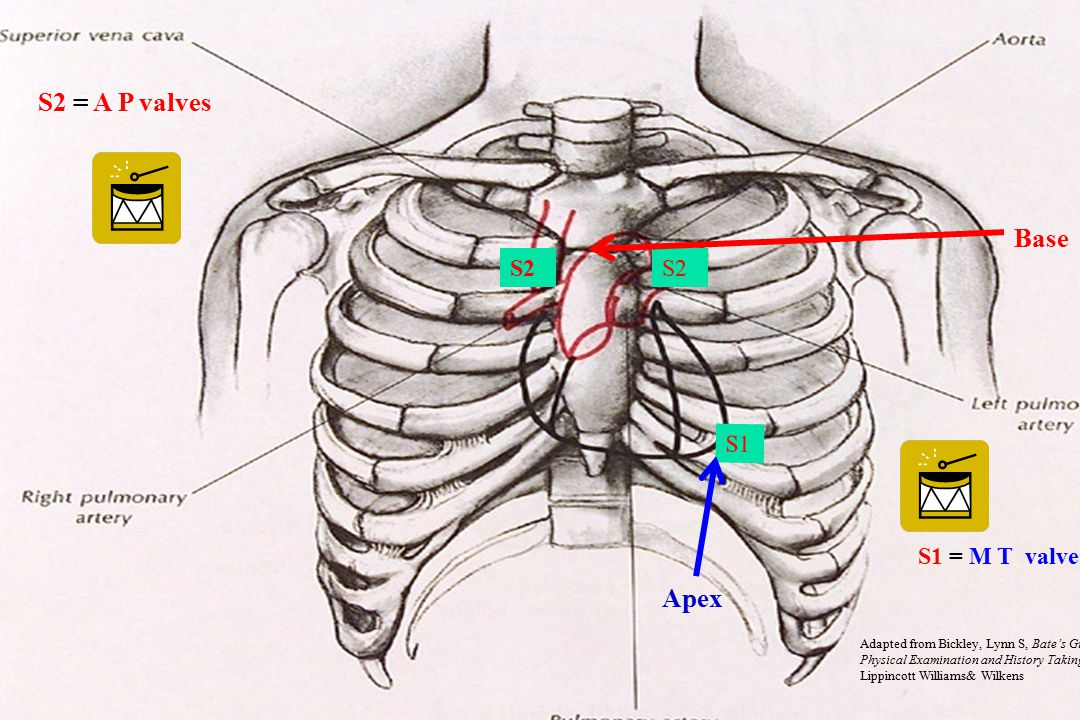 S2 S1 S2 = A P valves S1 = M T valves Adapted from Bickley, Lynn S, Bate's Guide to Physical Examination and History Taking.