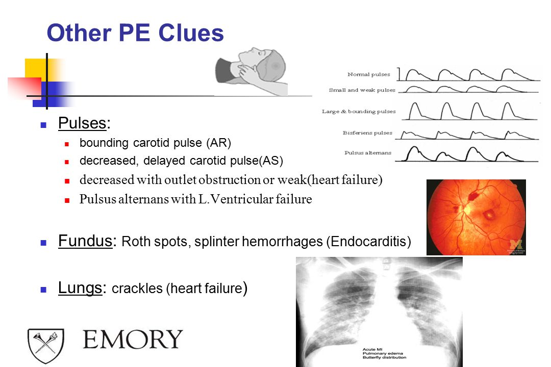 Other PE Clues Pulses: bounding carotid pulse (AR) decreased, delayed carotid pulse(AS) decreased with outlet obstruction or weak(heart failure) Pulsus alternans with L.Ventricular failure Fundus: Roth spots, splinter hemorrhages (Endocarditis) Lungs: crackles (heart failure )