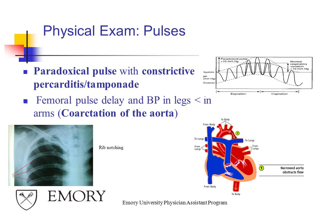 Physical Exam: Pulses Paradoxical pulse with constrictive percarditis/tamponade Femoral pulse delay and BP in legs < in arms (Coarctation of the aorta) Emory University Physician Assistant Program Rib notching