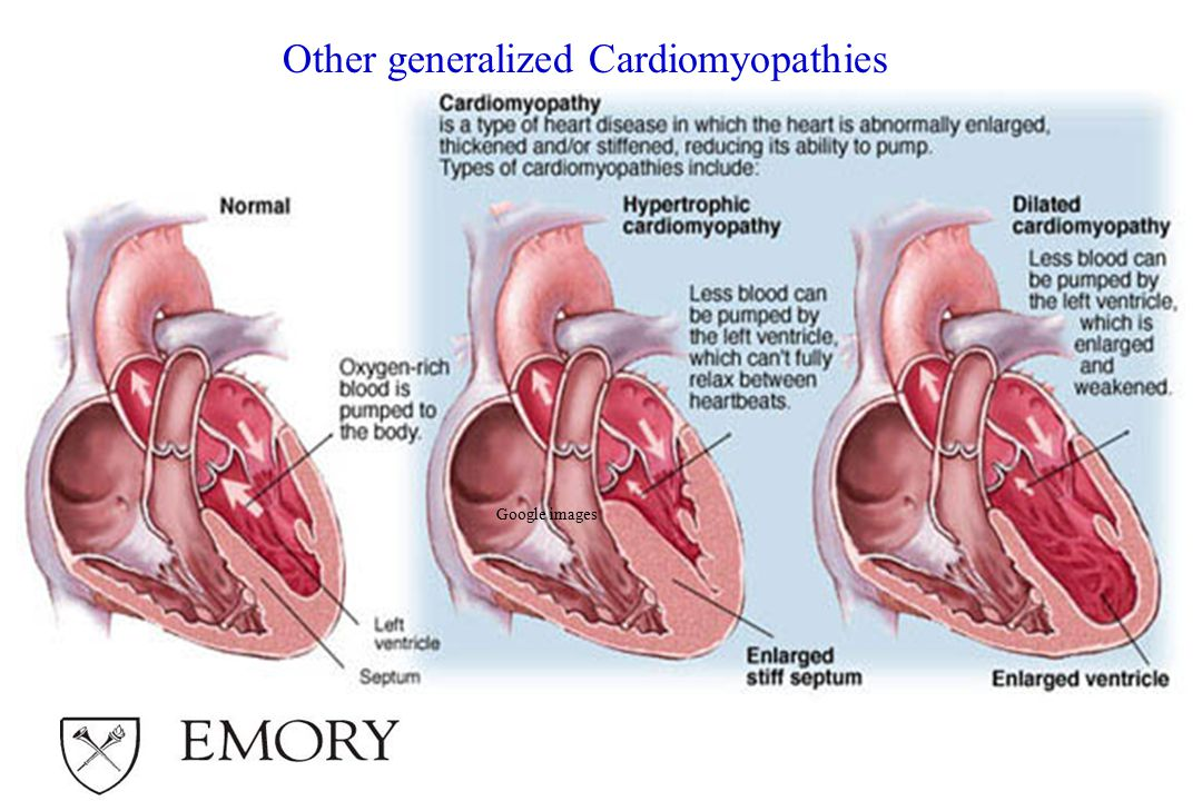 Google images Other generalized Cardiomyopathies