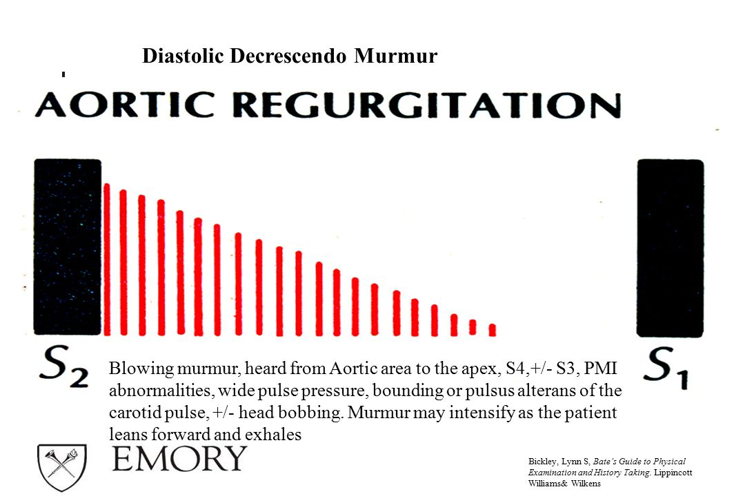 Diastolic Decrescendo Murmur Bickley, Lynn S, Bate's Guide to Physical Examination and History Taking.