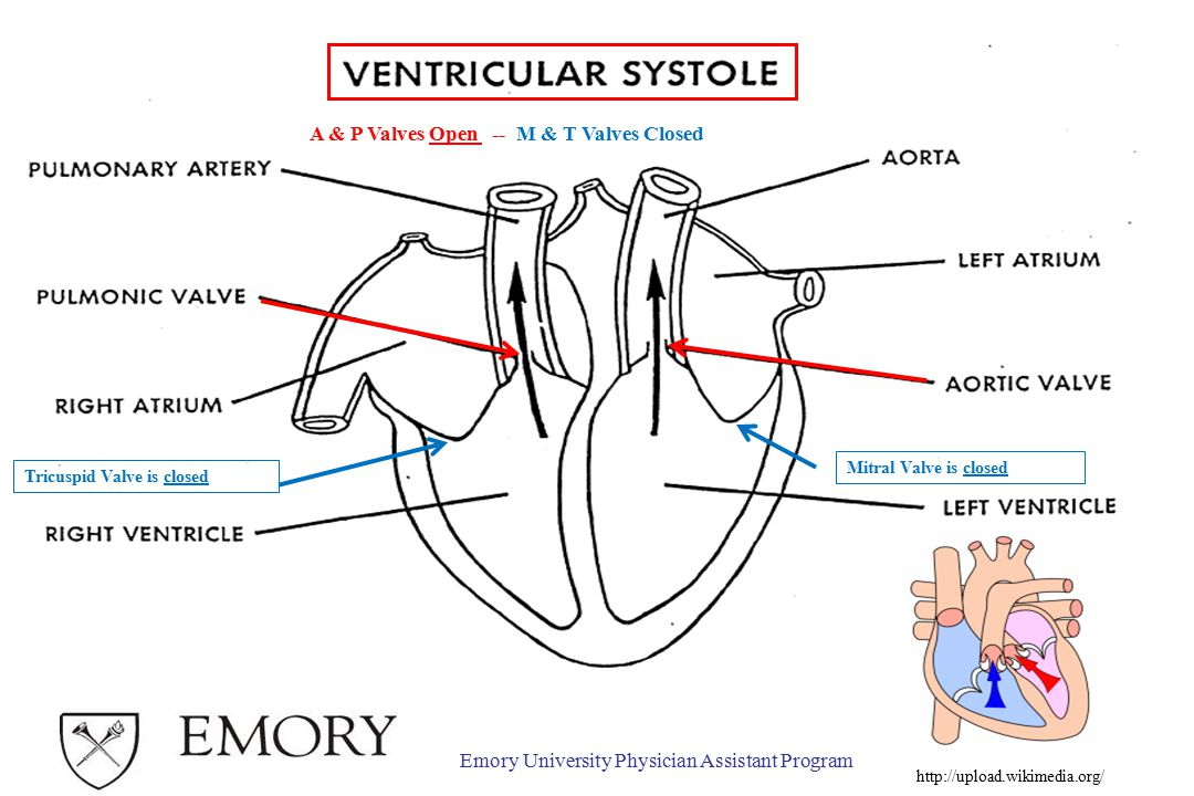 Emory University Physician Assistant Program Tricuspid Valve is closed Mitral Valve is closed A & P Valves Open -- M & T Valves Closed http://upload.wikimedia.org/