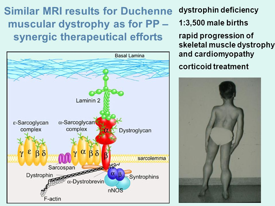 Similar MRI results for Duchenne muscular dystrophy as for PP – synergic therapeutical efforts dystrophin deficiency 1:3,500 male births rapid progression of skeletal muscle dystrophy and cardiomyopathy corticoid treatment