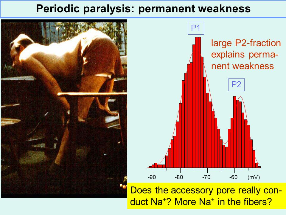 Periodic paralysis: permanent weakness large P2-fraction explains perma- nent weakness -90-80-70-60 (mV) P1 P2 Does the accessory pore really con- duct Na + .
