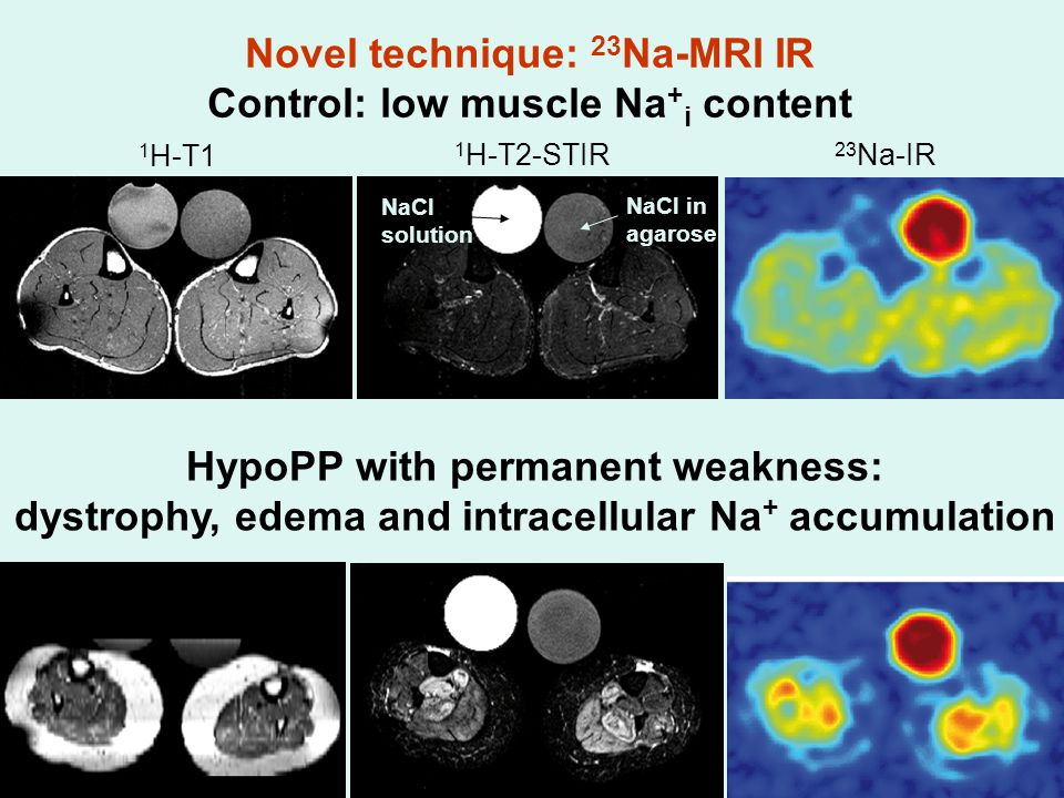 HypoPP with permanent weakness: dystrophy, edema and intracellular Na + accumulation 1 H-T1 23 Na-IR 1 H-T2-STIR NaCl solution NaCl in agarose Novel technique: 23 Na-MRI IR Control: low muscle Na + i content
