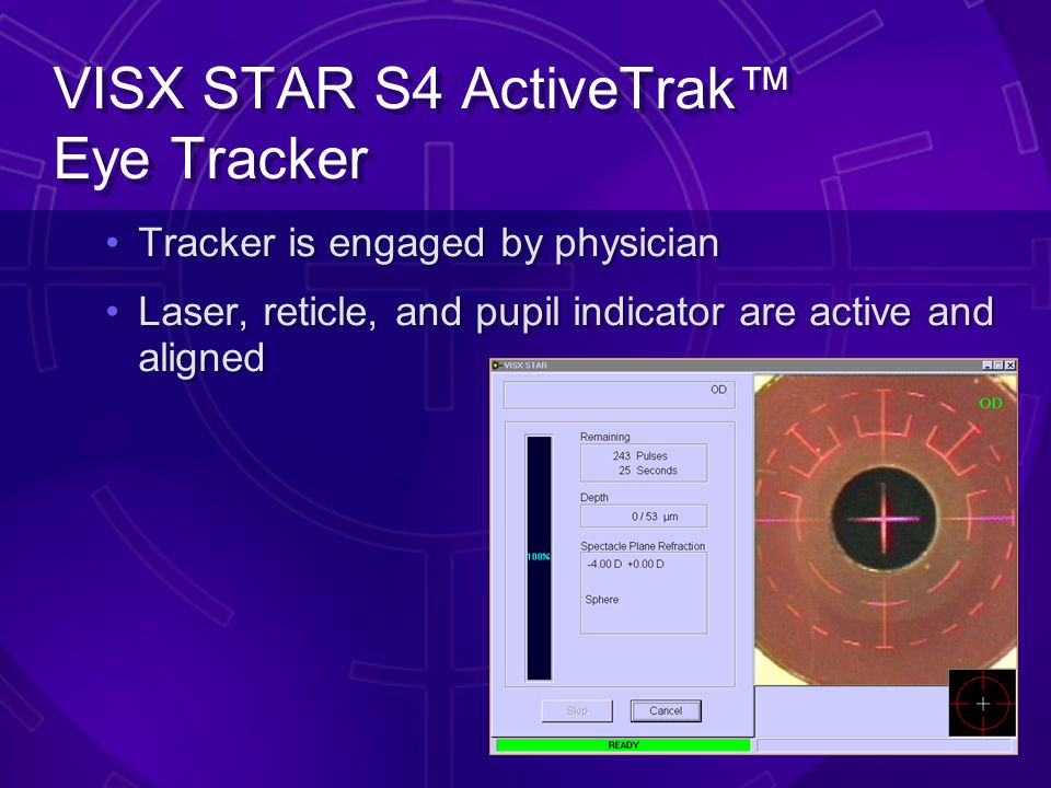 VISX STAR S4 ActiveTrak™ Eye Tracker Dual side-mounted, infrared cameras monitor x, y, and z movements Oblique IR lighting does not interfere with pro