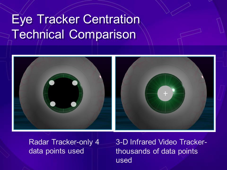 VISX STAR S4 ActiveTrak™ Technical Comparison VISX ® ActiveTrak™: DIRECT measurement of eye position in real time –Tracks pupil in its natural positio
