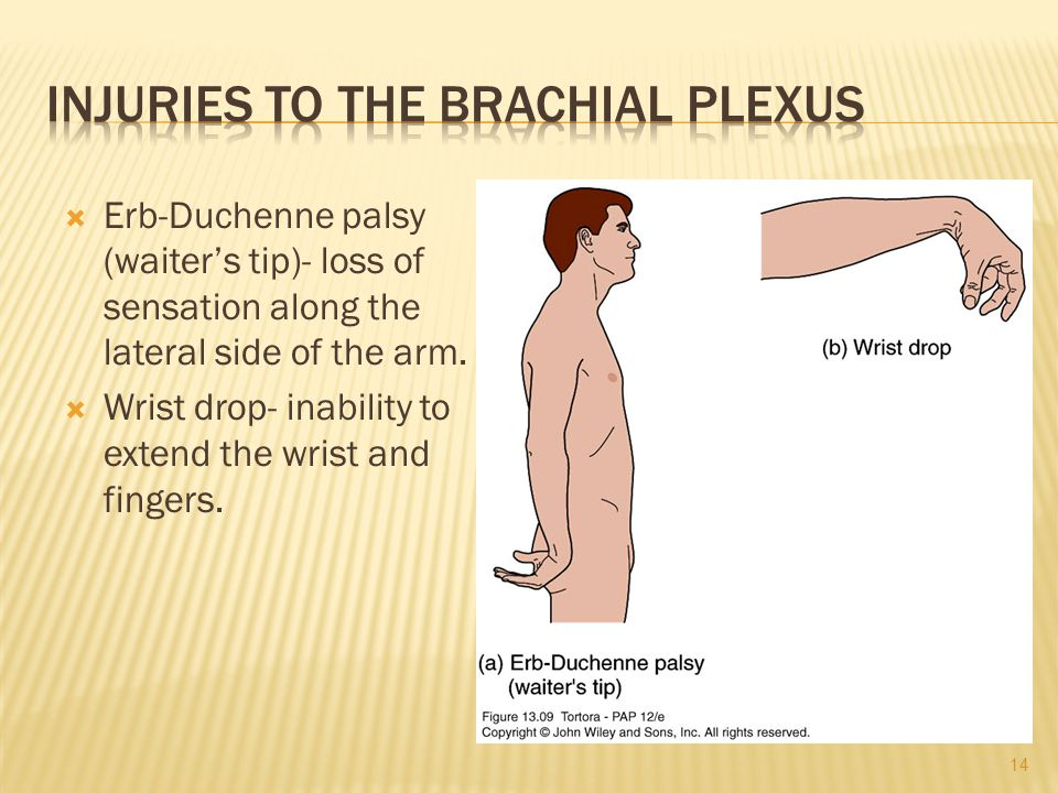  Erb-Duchenne palsy (waiter's tip)- loss of sensation along the lateral side of the arm.